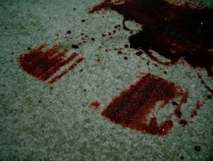 Check out the following steps on how to remove a blood stain from the carpet.